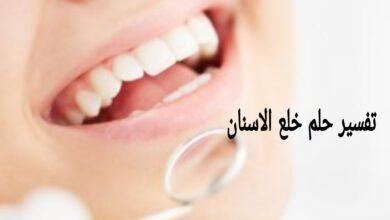 تفسير حلم خلع الاسنان