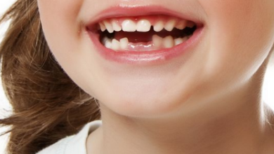 سقوط الاسنان